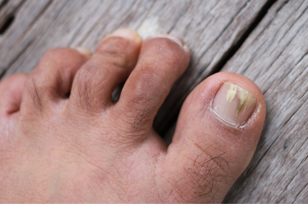 Best Toenail Fungus Treatment 2019: Reviews & Guide - PRIORY OF TEN