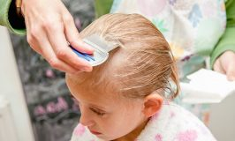 Best at Home Lice Treatment